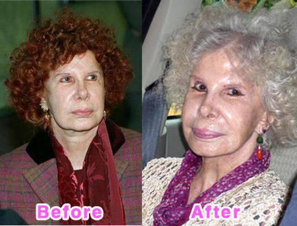 Gwiazdy przed i po operacjach plastycznych 2