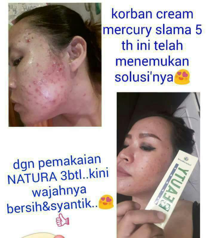 natura-beauty-spray